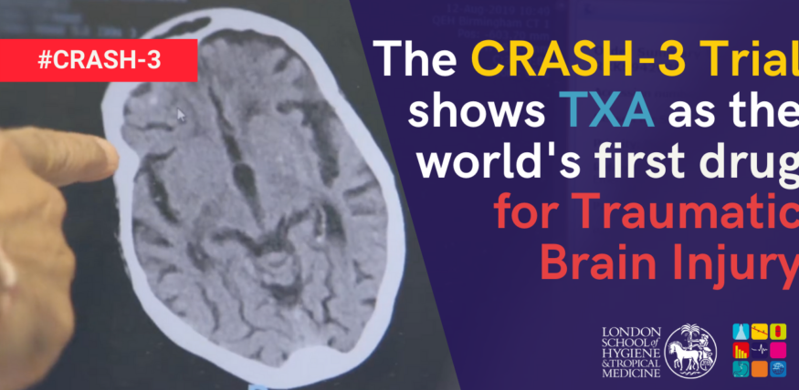 The CRASH-3 Trial shows that TXA as the world first drug for TBI